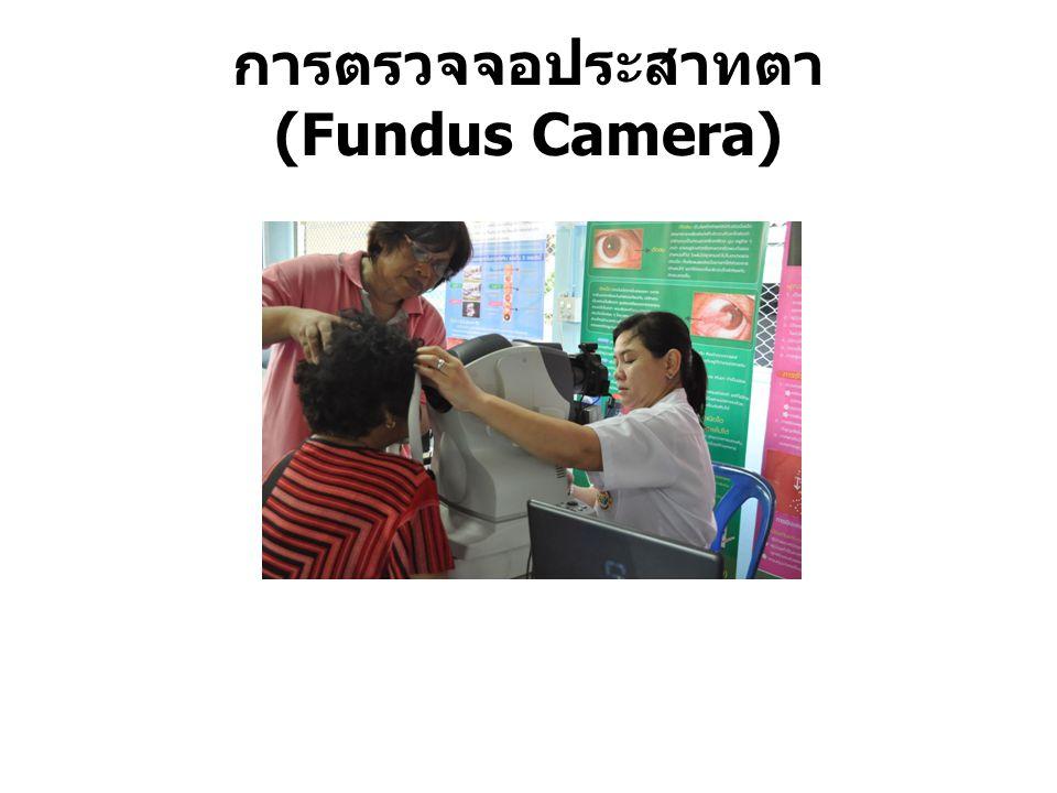 การตรวจจอประสาทตา (Fundus Camera)