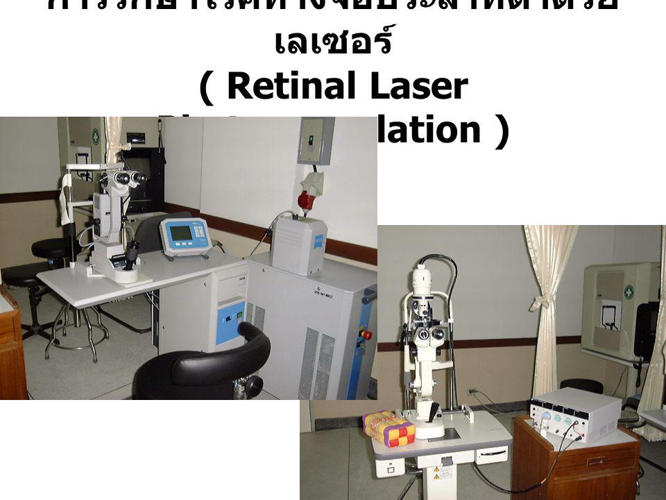 การรักษาโรคทางจอประสาทตาด้วยเลเซอร์ ( Retinal Laser Photocoagulation )