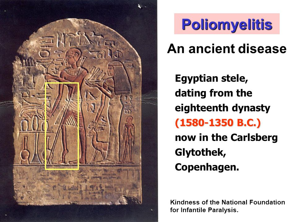 Poliomyelitis An ancient disease Egyptian stele,