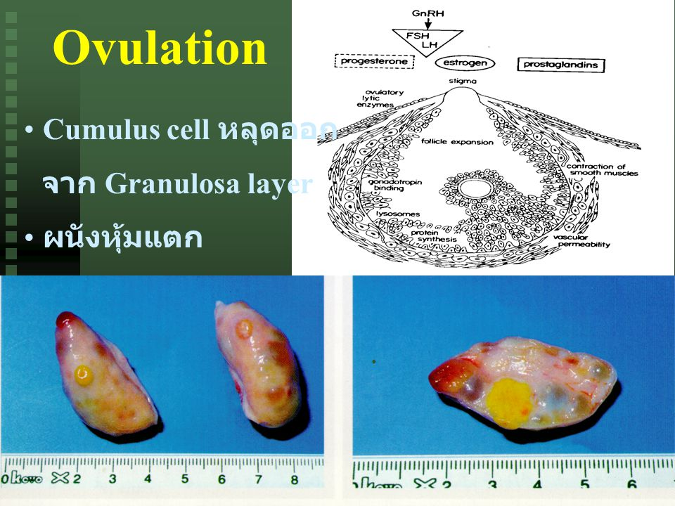 Ovulation Cumulus cell หลุดออก จาก Granulosa layer ผนังหุ้มแตก