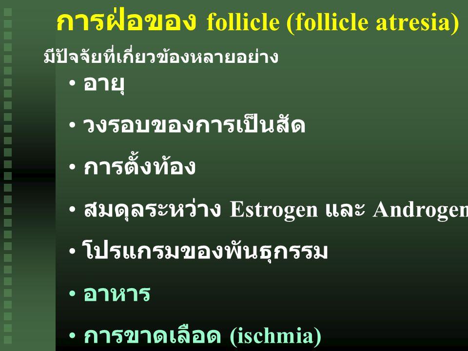 การฝ่อของ follicle (follicle atresia)