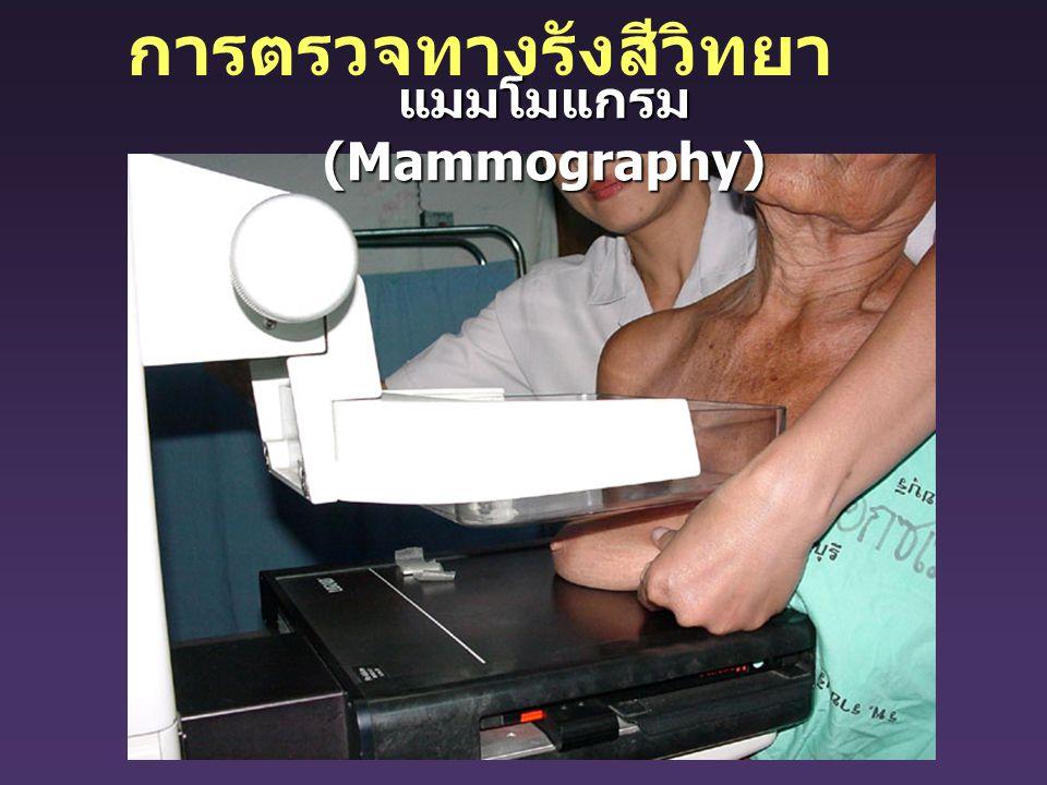 การตรวจทางรังสีวิทยา แมมโมแกรม (Mammography)