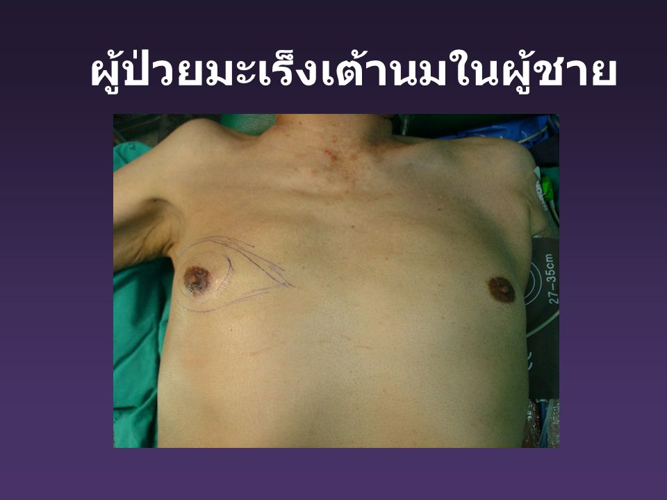 ผู้ป่วยมะเร็งเต้านมในผู้ชาย