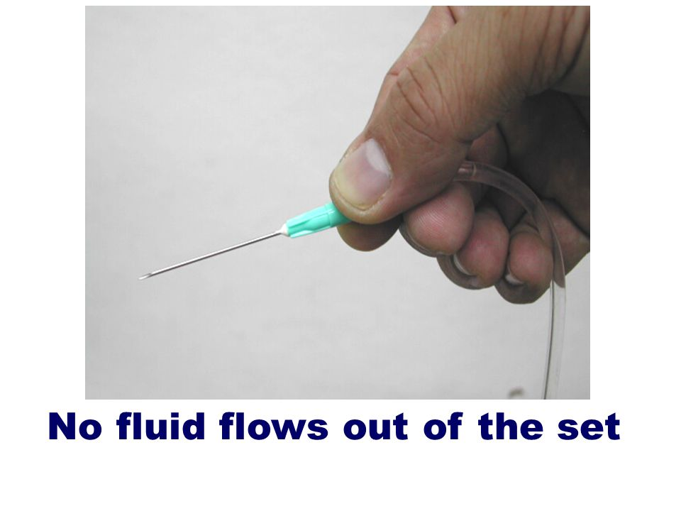 No fluid flows out of the set