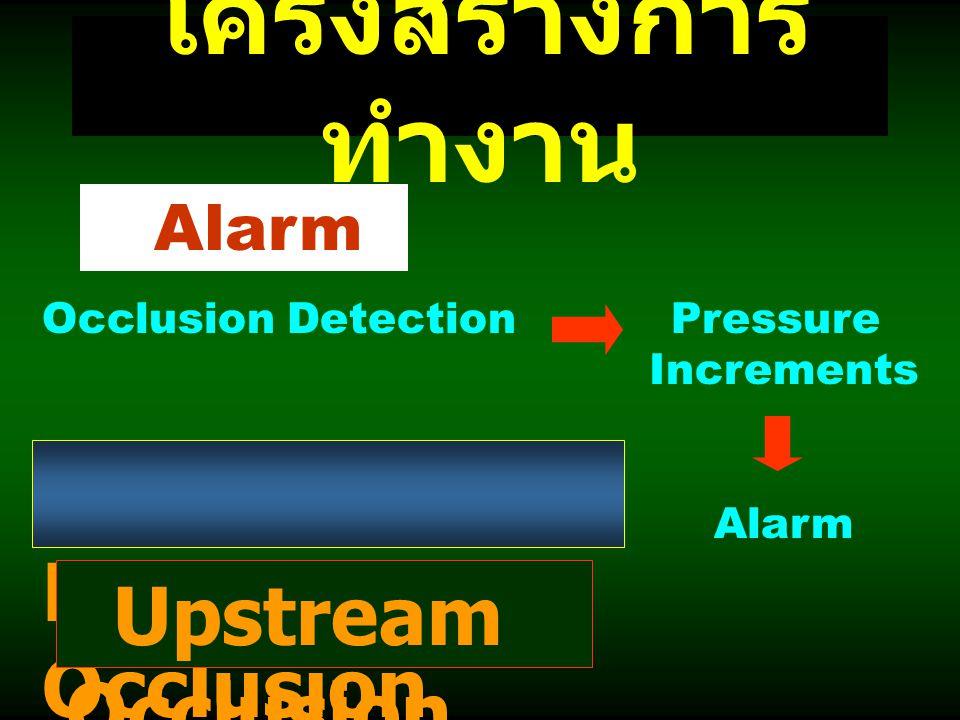 โครงสร้างการทำงาน Downstream Occlusion Upstream Occlusion Alarm