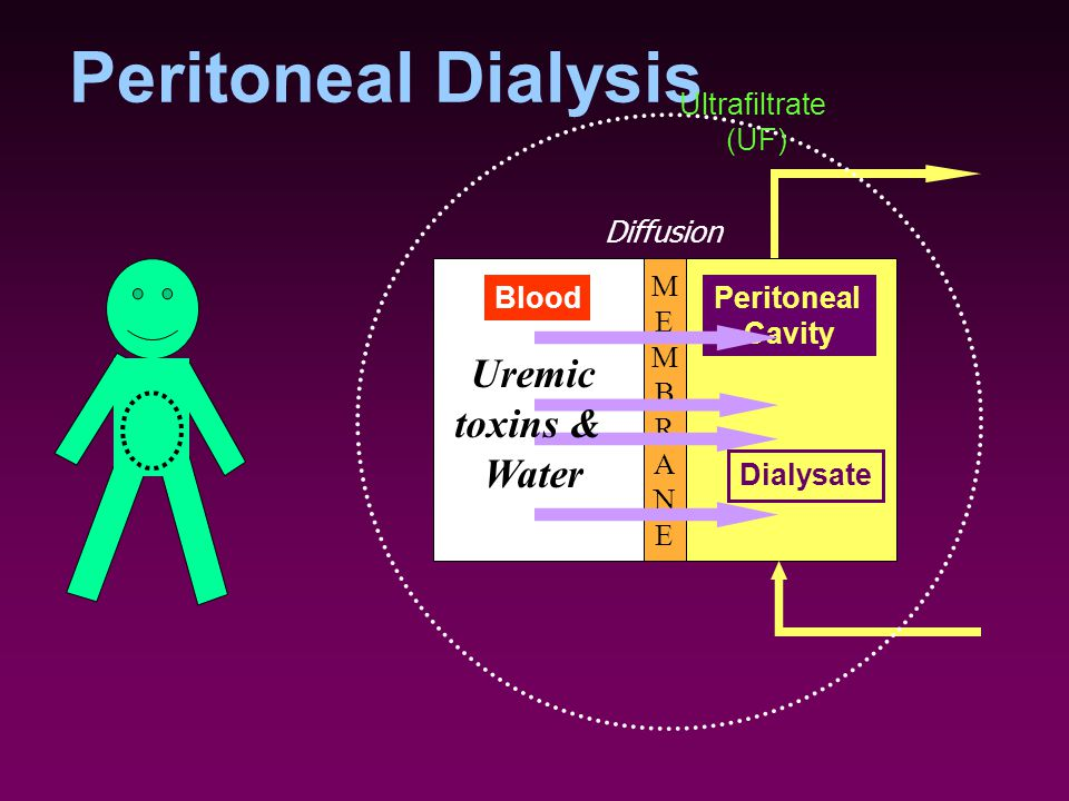 Peritoneal Dialysis Uremic toxins & Water Ultrafiltrate (UF) Diffusion