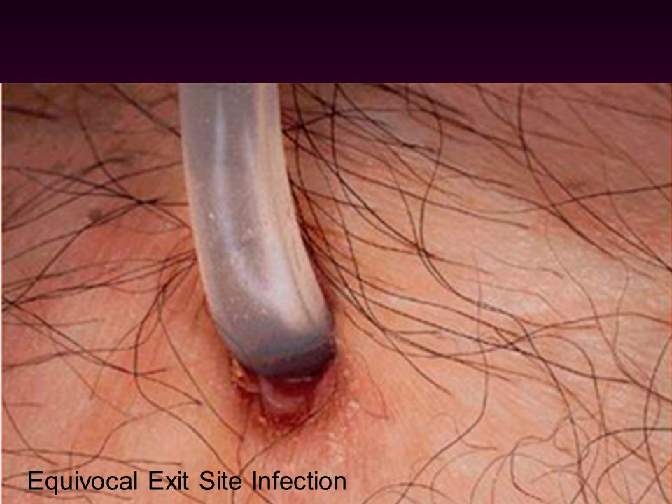 Equivocal Exit Site Infection