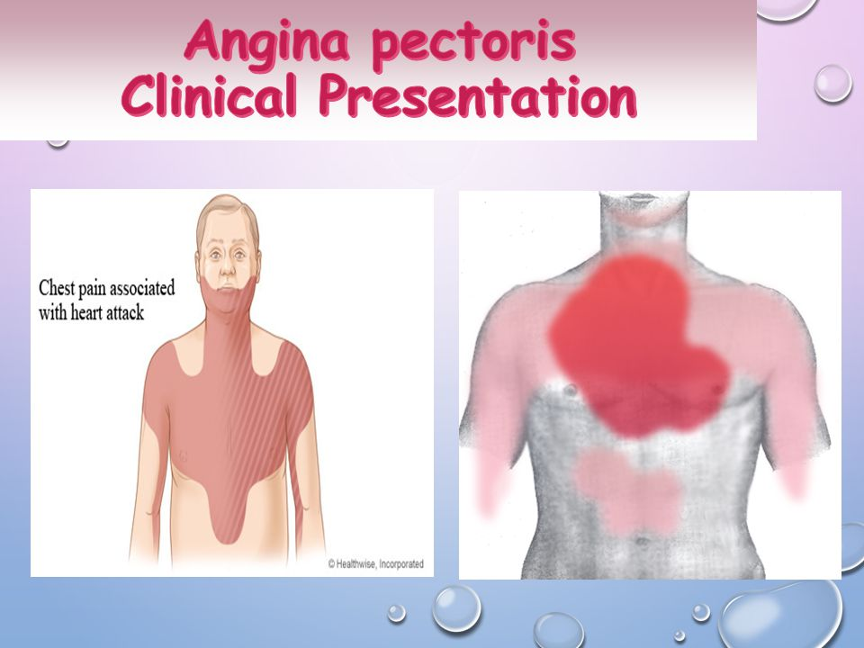 Angina pectoris Clinical Presentation