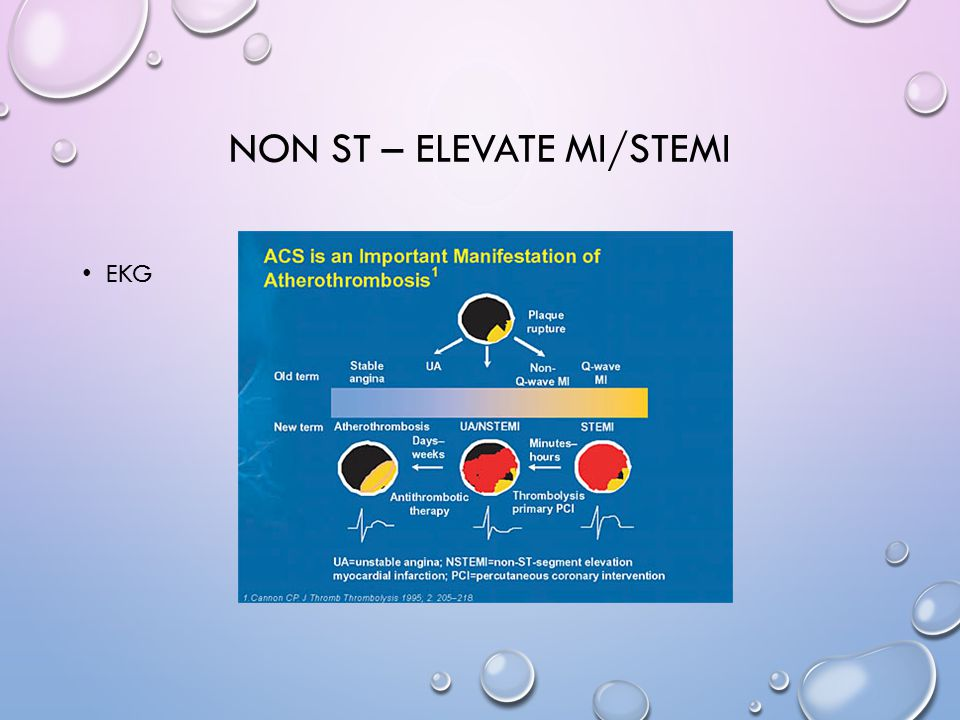 Non ST – Elevate MI/STEMI