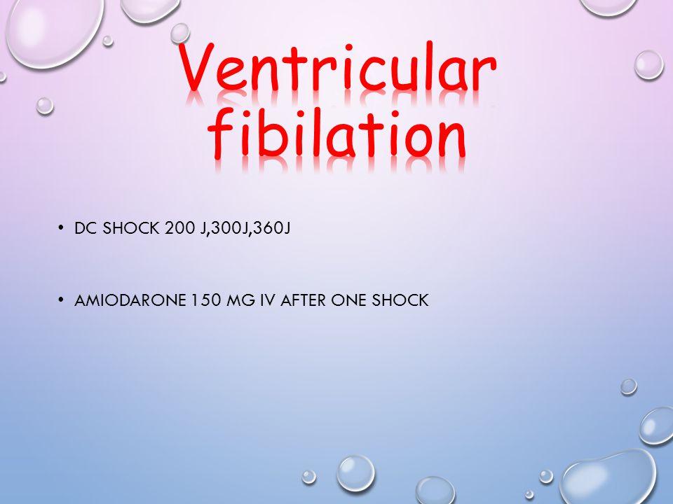 Ventricular fibilation
