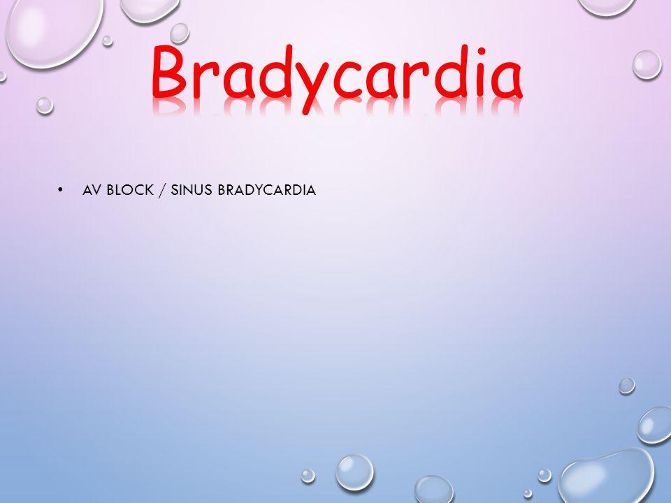 Bradycardia AV block / sinus bradycardia