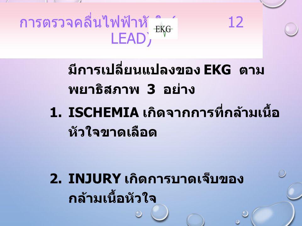 การตรวจคลื่นไฟฟ้าหัวใจ( 12 lead)
