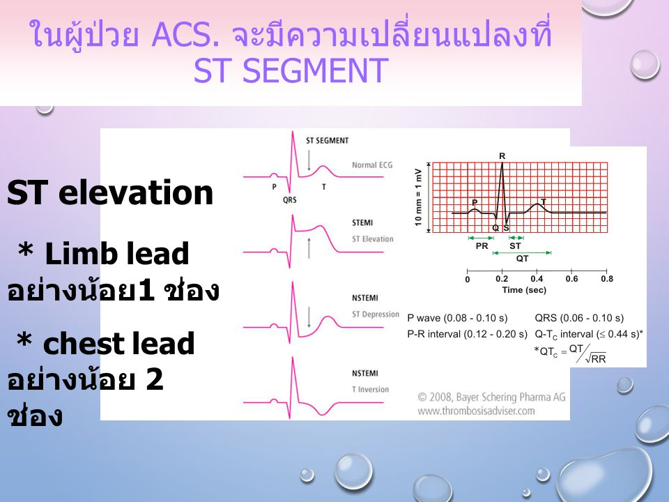 ในผู้ป่วย ACS. จะมีความเปลี่ยนแปลงที่ ST segment