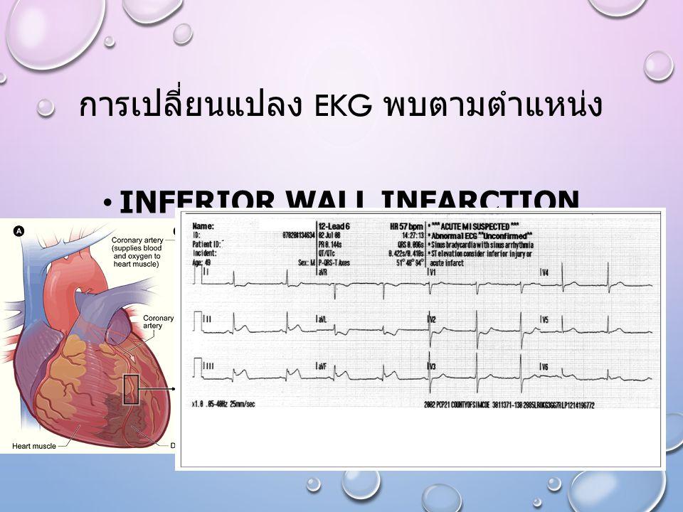 การเปลี่ยนแปลง EKG พบตามตำแหน่ง