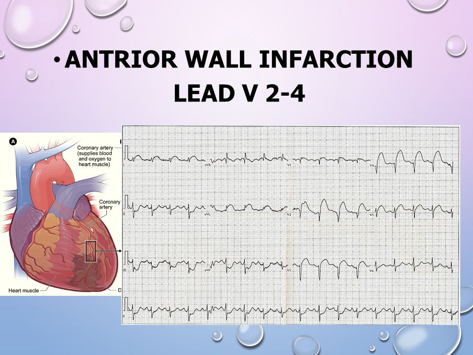 Antrior wall infarction lead V 2-4