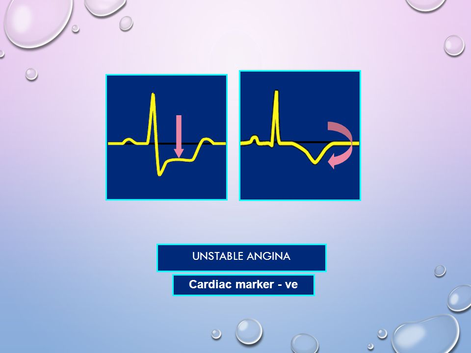 Unstable angina Cardiac marker - ve