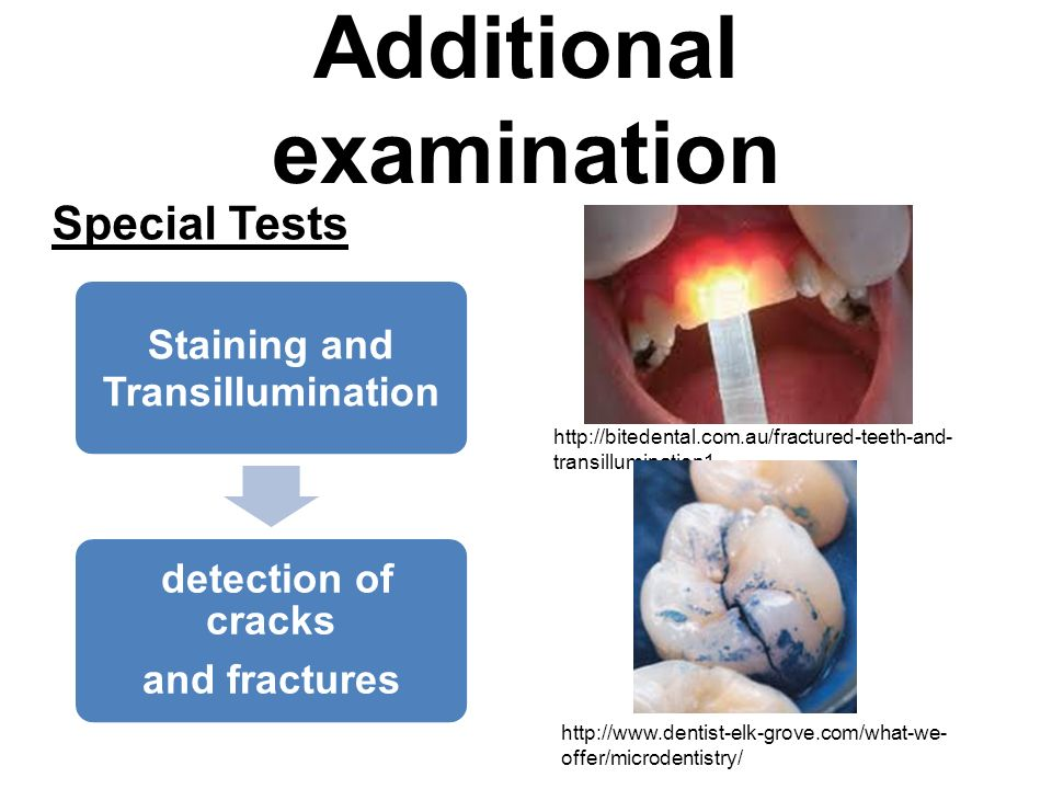 Additional examination