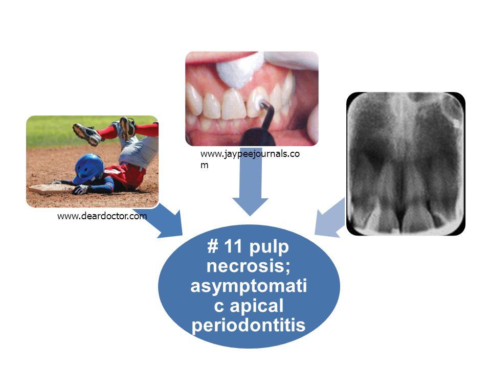 # 11 pulp necrosis; asymptomatic apical periodontitis