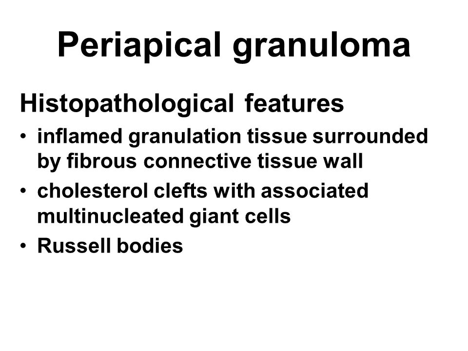 Periapical granuloma Histopathological features