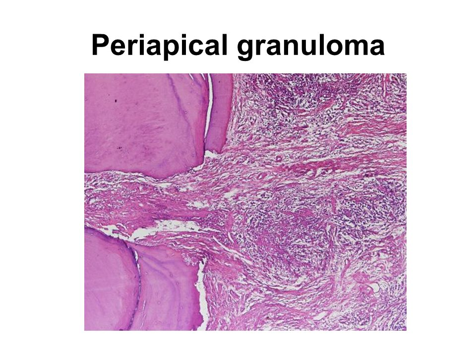 Periapical granuloma