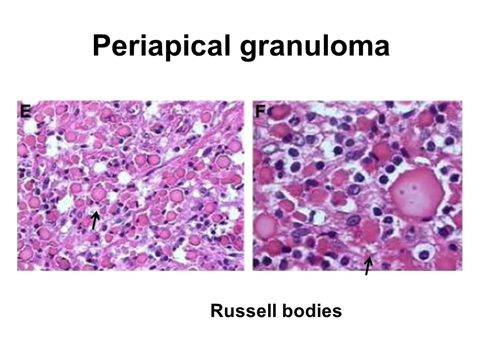 Periapical granuloma Russell bodies