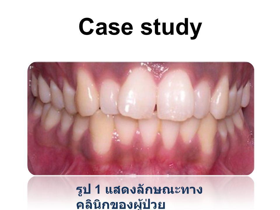 Case study รูป 1 แสดงลักษณะทางคลินิกของผู้ป่วย