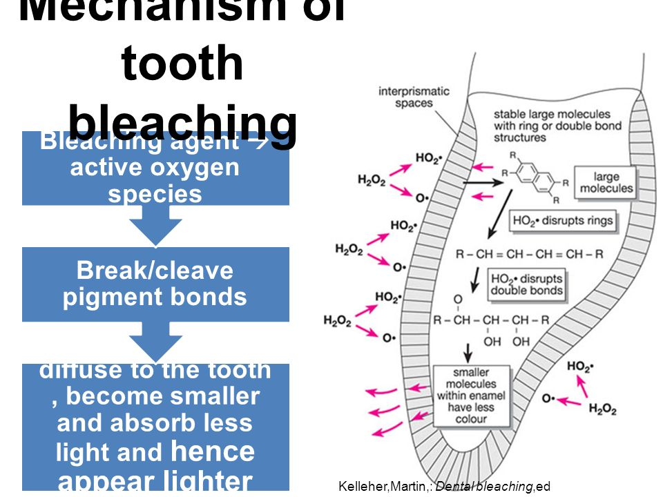Mechanism of tooth bleaching