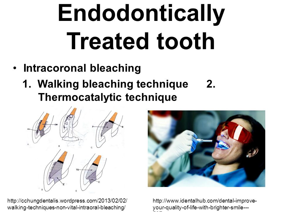 Endodontically Treated tooth