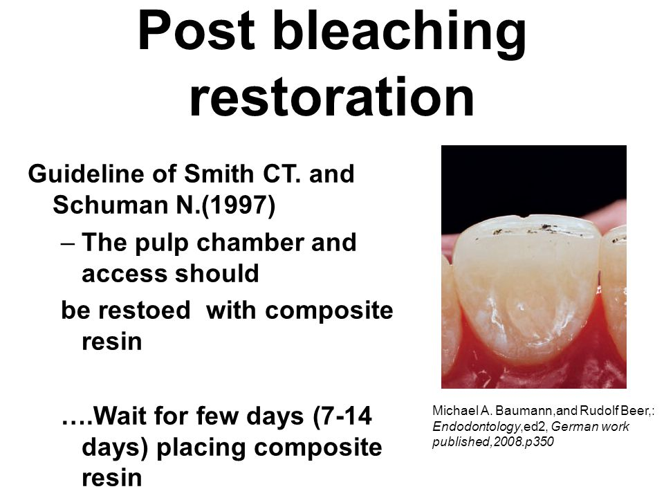Post bleaching restoration