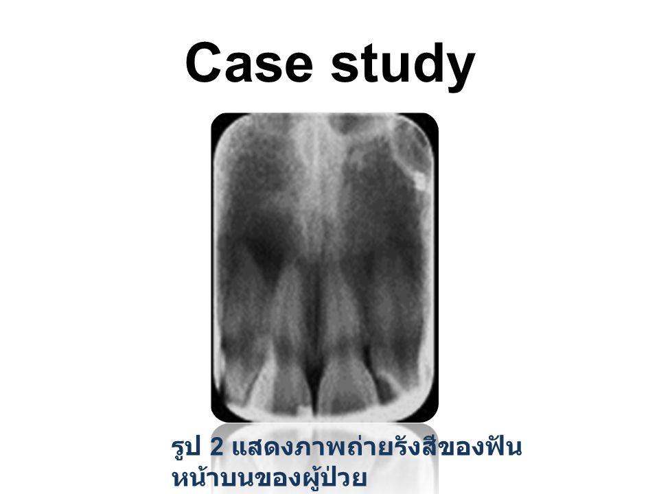 Case study รูป 2 แสดงภาพถ่ายรังสีของฟันหน้าบนของผู้ป่วย