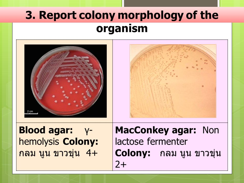 3. Report colony morphology of the organism