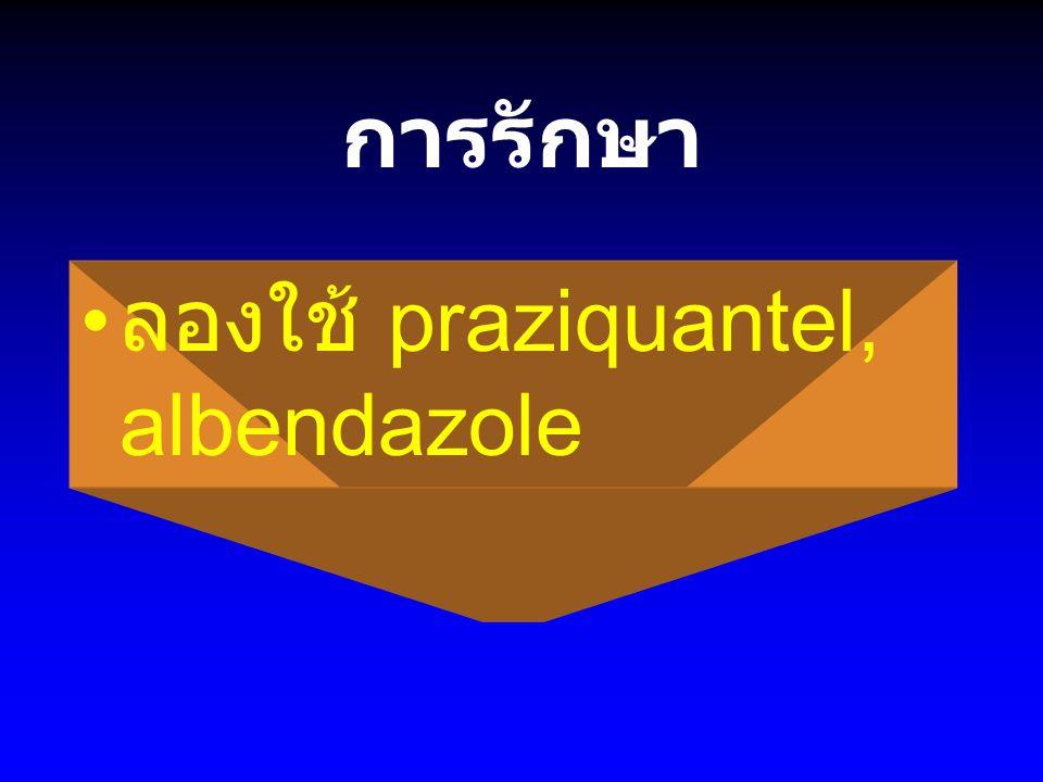 การรักษา ลองใช้ praziquantel, albendazole