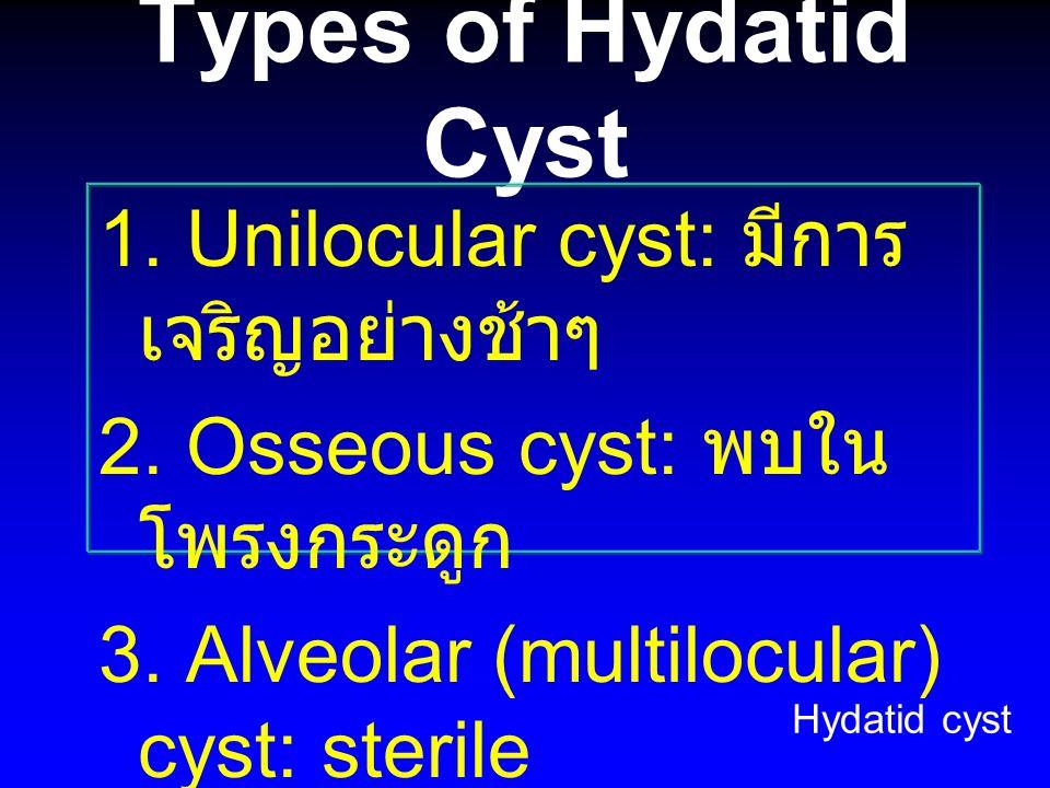 Types of Hydatid Cyst 1. Unilocular cyst: มีการเจริญอย่างช้าๆ