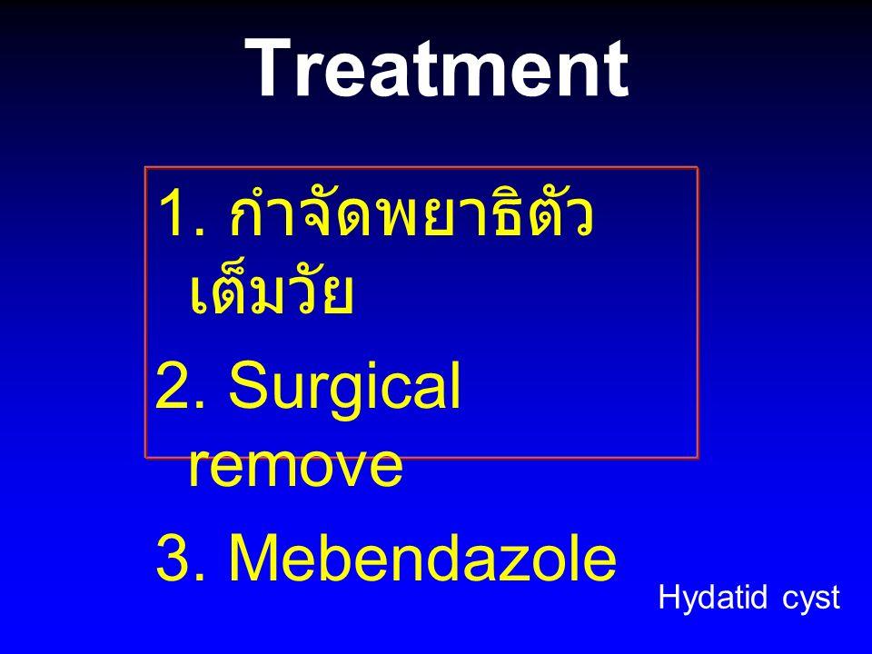 Treatment 1. กำจัดพยาธิตัวเต็มวัย 2. Surgical remove 3. Mebendazole
