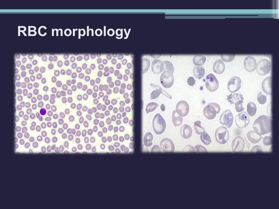 RBC morphology