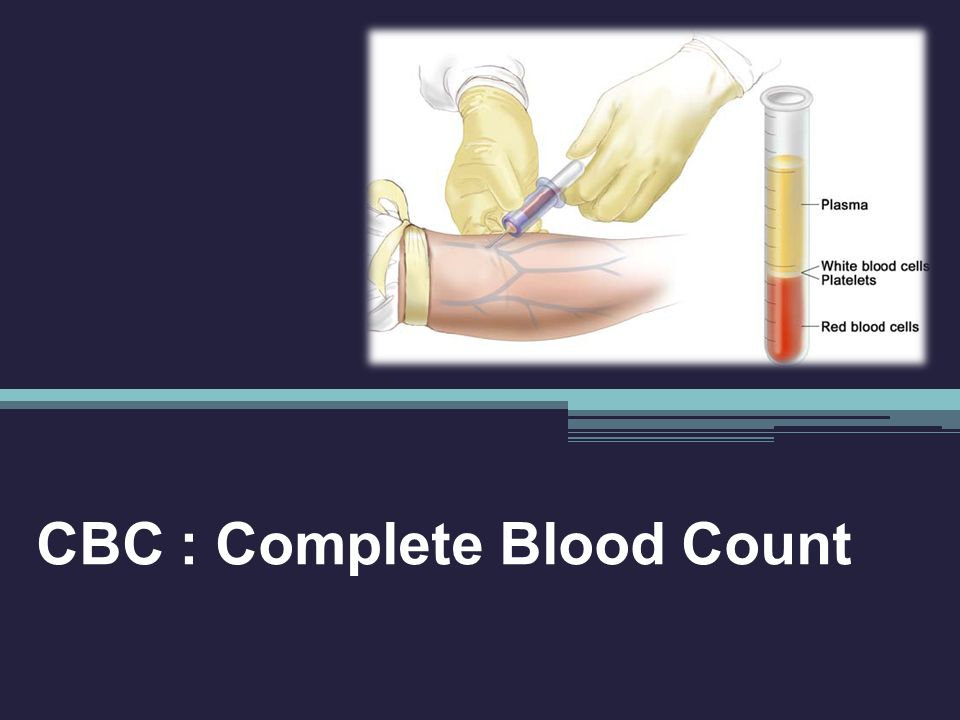 CBC : Complete Blood Count