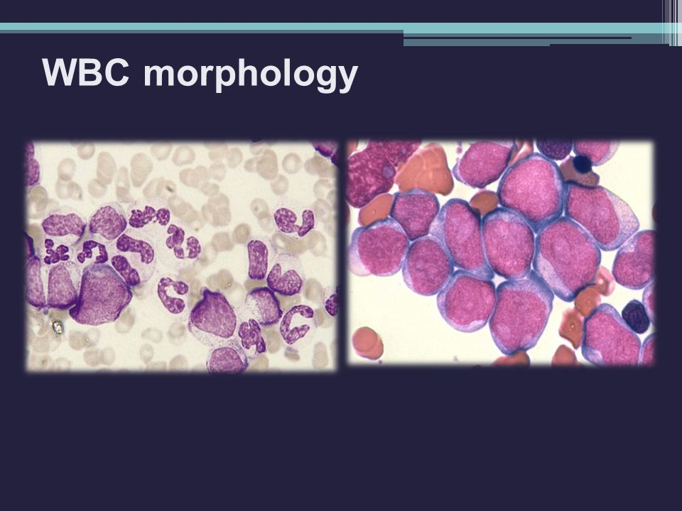 WBC morphology