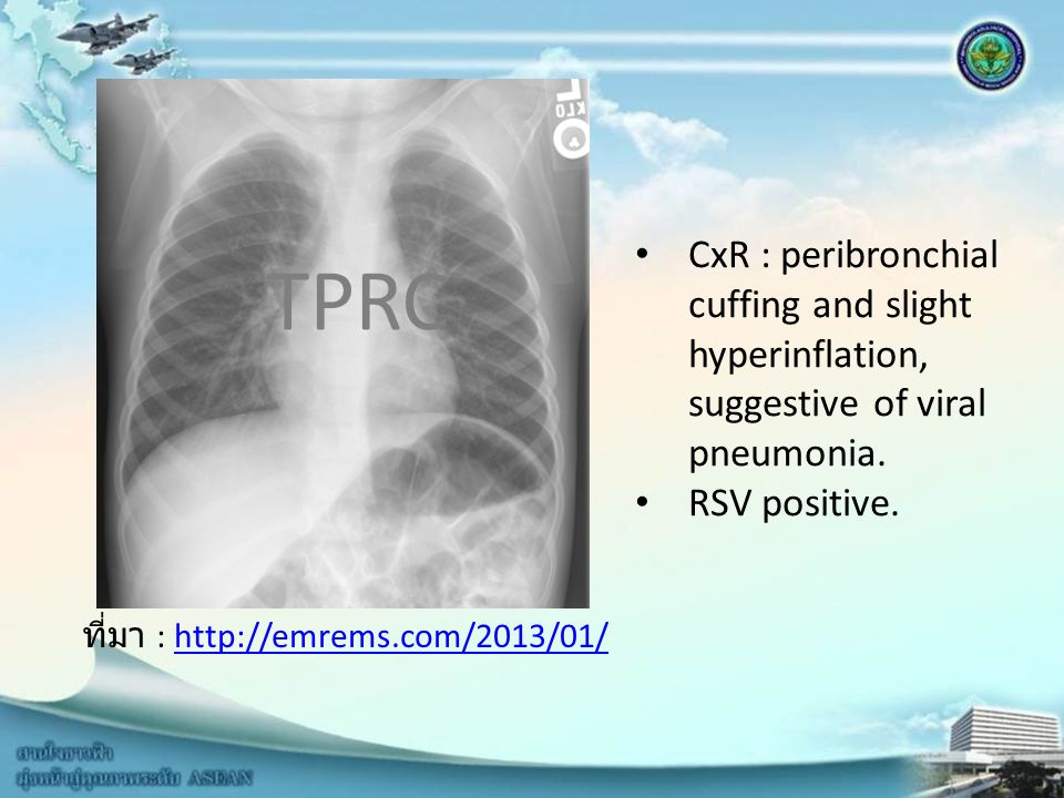 CxR : peribronchial cuffing and slight hyperinflation, suggestive of viral pneumonia.
