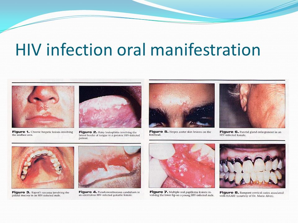 HIV infection oral manifestration
