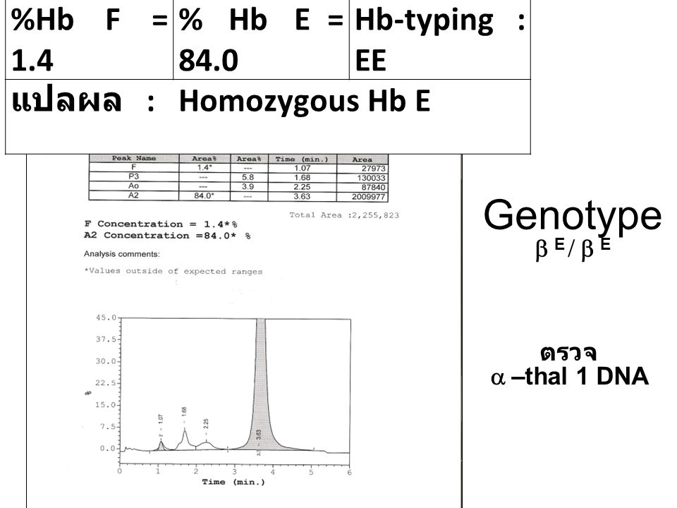 Genotype b E / b E %Hb F = 1.4 % Hb E = 84.0 Hb-typing : EE
