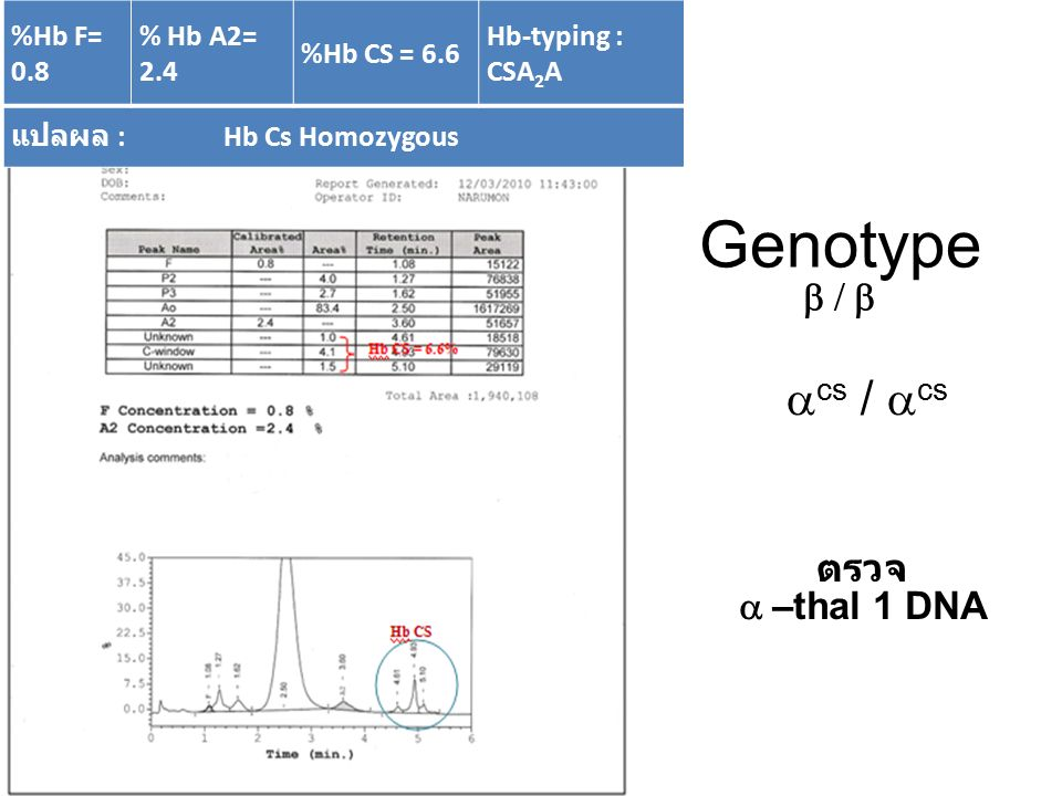 Genotype acs / acs b / b ตรวจ a –thal 1 DNA %Hb F= 0.8 % Hb A2= 2.4