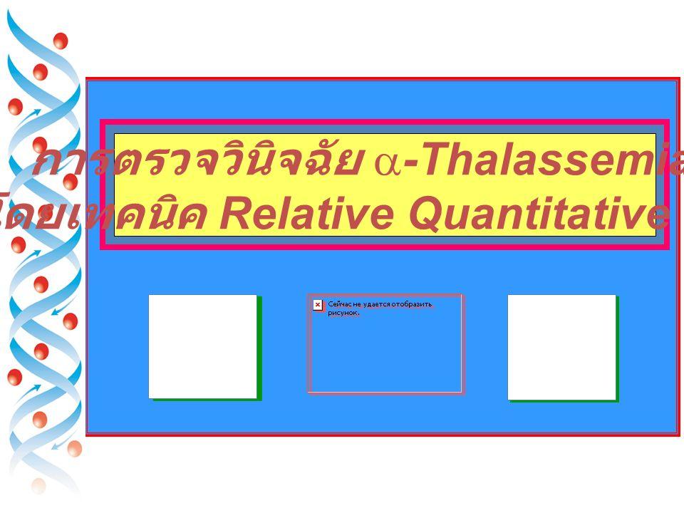 โดยเทคนิค Relative Quantitative PCR