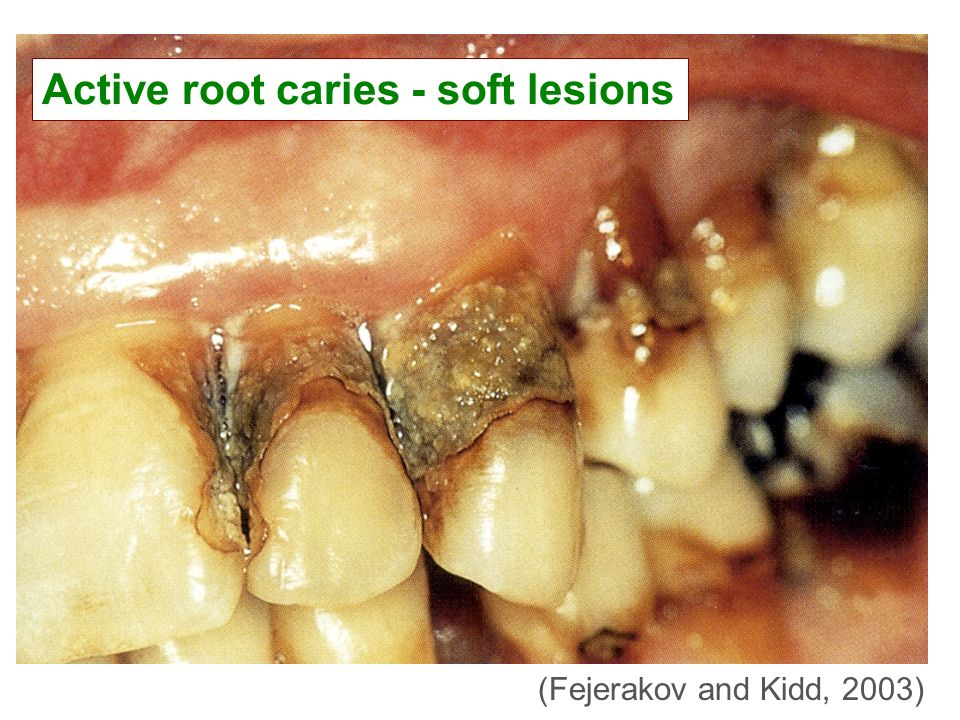 Active root caries - soft lesions