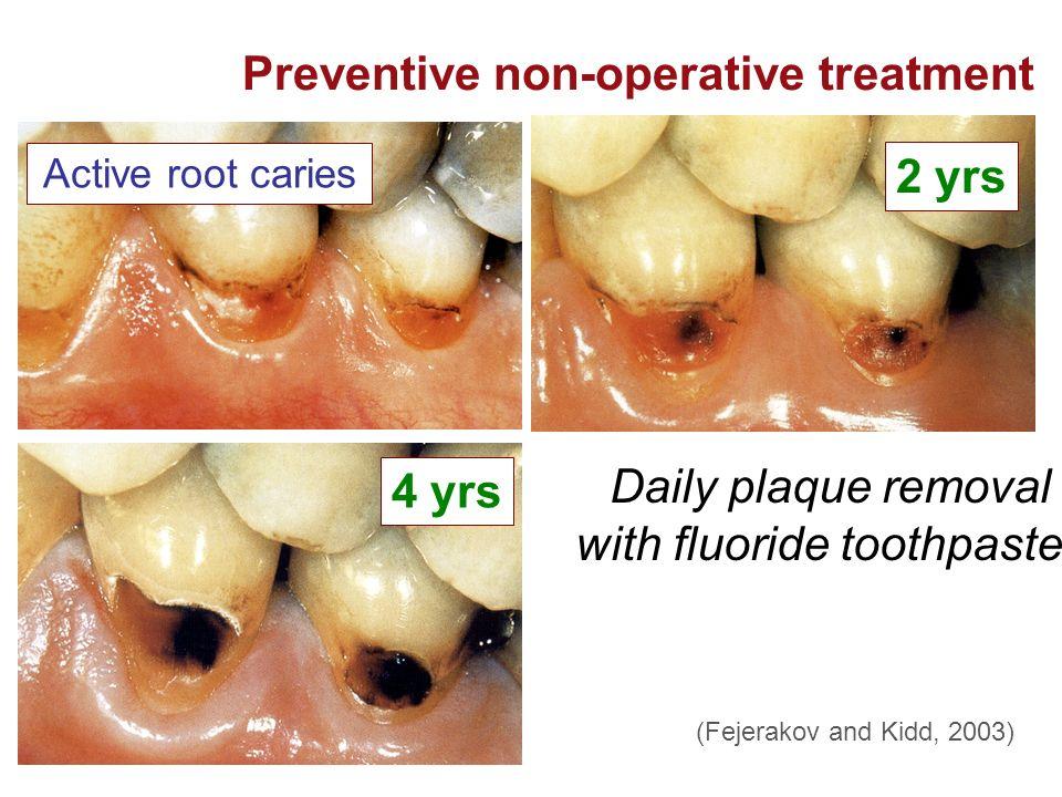 Preventive non-operative treatment