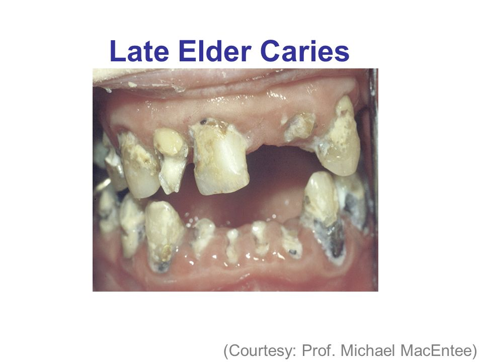 Late Elder Caries (Courtesy: Prof. Michael MacEntee)