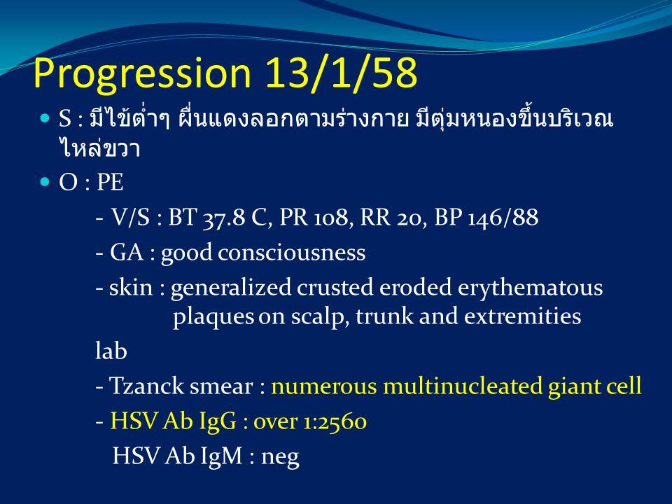Progression 13/1/58 S : มีไข้ต่ำๆ ผื่นแดงลอกตามร่างกาย มีตุ่มหนองขึ้นบริเวณไหล่ขวา. O : PE. - V/S : BT 37.8 C, PR 108, RR 20, BP 146/88.