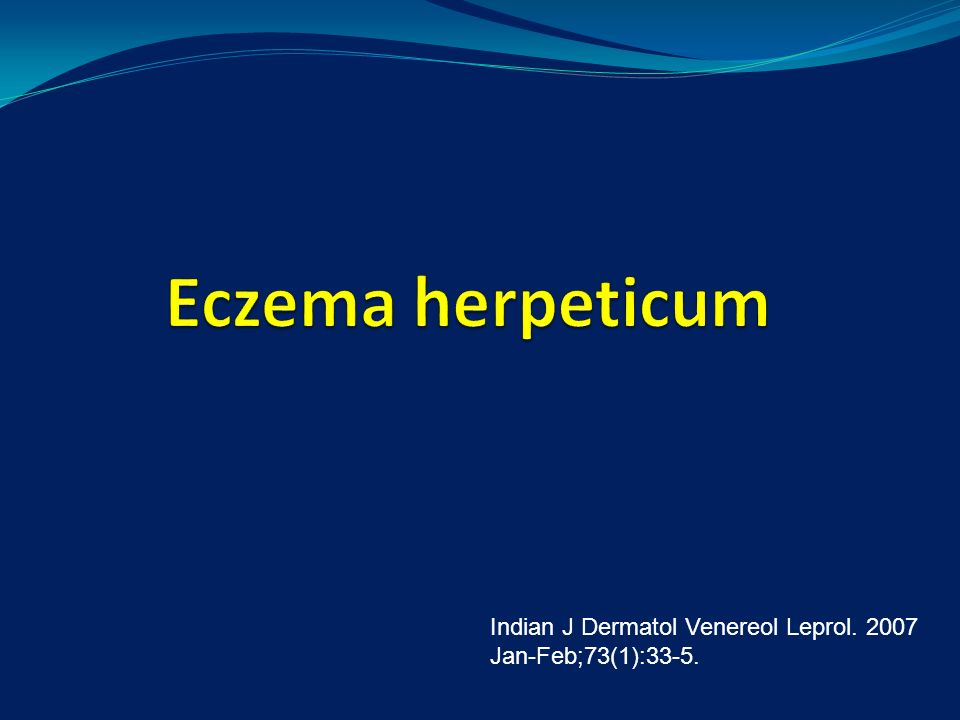 Eczema herpeticum Indian J Dermatol Venereol Leprol. 2007 Jan-Feb;73(1):33-5.