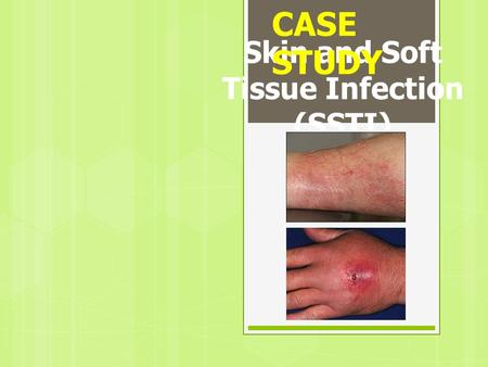 Skin and Soft Tissue Infection (SSTI)
