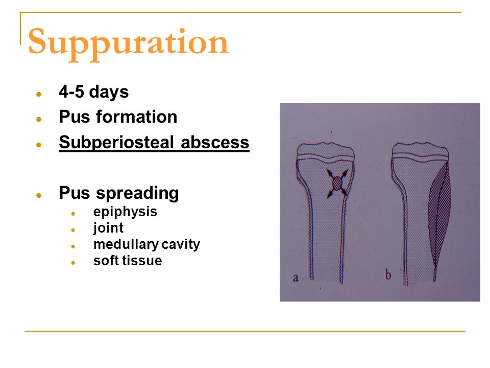 Suppuration 4-5 days Pus formation Subperiosteal abscess Pus spreading