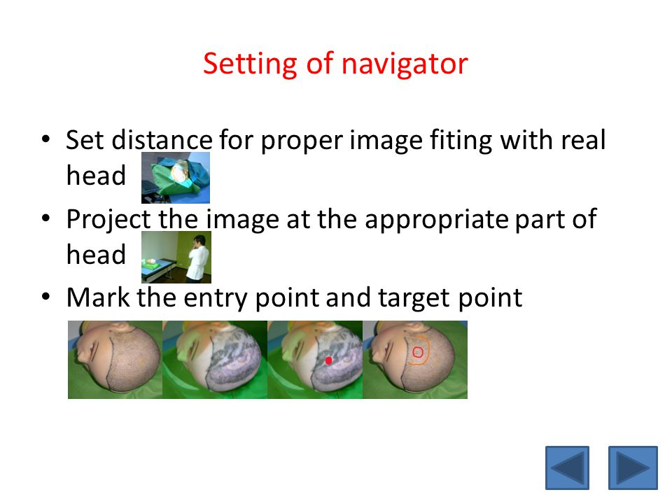 Setting of navigator Set distance for proper image fiting with real head. Project the image at the appropriate part of head.